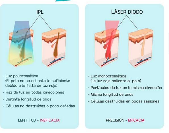 Moadiario Depilación láser Vs IPL gráfico